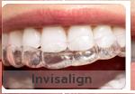 bangkok dental, dental bridge, dental clinic, dental cosmetic, dental crown, dental veneer, bangkok dentist, invisalign bangkok, laser tooth whitening, bangkok sukhumvit